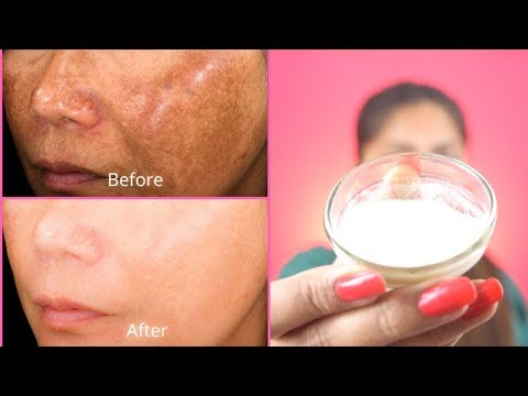 How To Get Rid of Hyper pigmentation - Freckles, Dark Spots, Melasma, Black Patches Fast Naturally