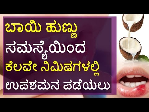 Home Remedies for Mouth Ulcers in Kannada: Mouth Ulcer Treatment at Home | How to Cure Mouth Ulcers