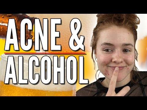 Alcohol and Liquor is Bad for your Skin and CAN Cause Acne!