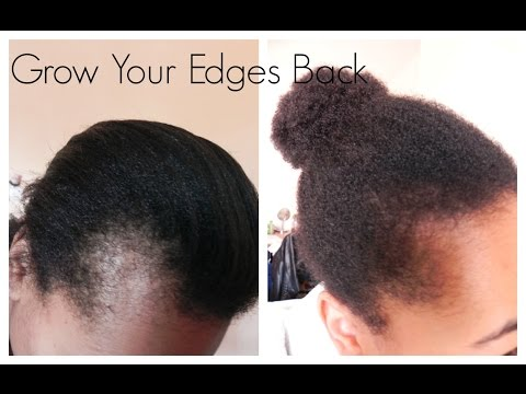 Get Those Edges Back | How I Grew Out My Edges And Bald Spots