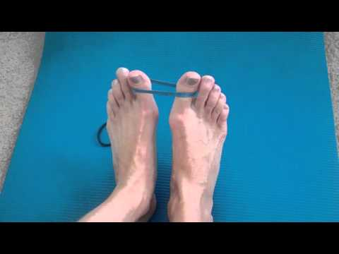How to Fix Bunions in your Feet
