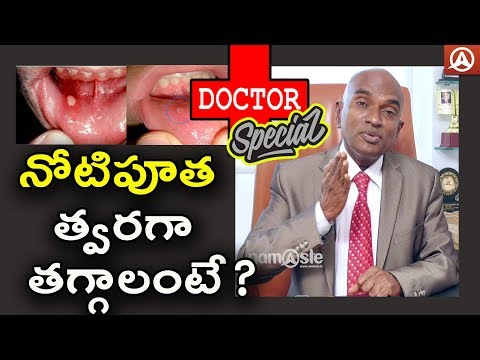 Dr.GVS Rao ENT Surgeon | Mouth Ulcers Symptoms and Treatment | Namaste Telugu