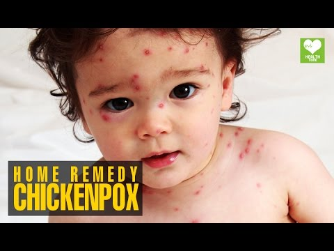 Chickenpox (चेचक) - Home Remedies | Health Tips | Educational Video