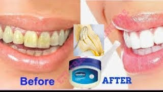 WHITEN YOUR YELLOW TEETH AT HOME USING THIS SIMPLE HOME REMEDY IN ONLY 2 MINUTES