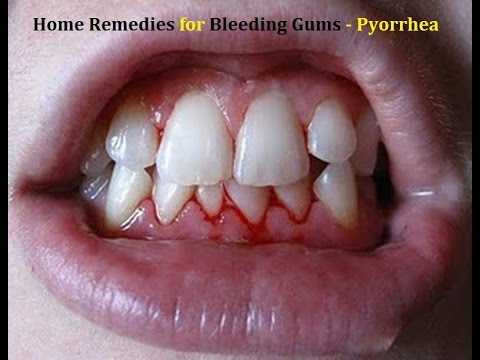 Bleeding Gums Home Remedies - Pyorrhea - Gingivitis