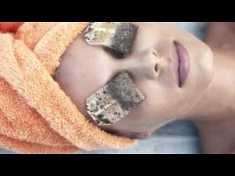 how to get rid of bloodshot eyes | dry eyes treatment :  how to get rid of bloodshot eyes fast