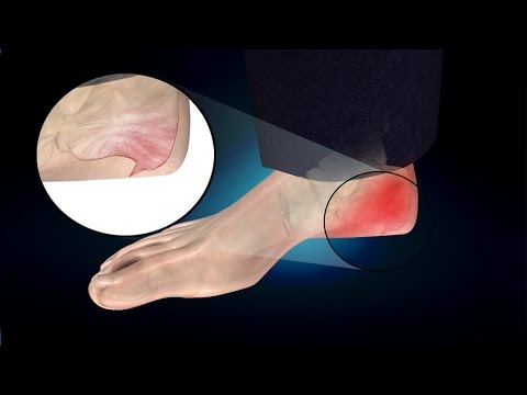 Heel Spur or Calcaneal Spur: Treatment, Causes, Symptoms, Prevention