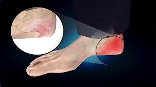 Heel Spur or Calcaneal Spur: Treatment, Causes, Symptoms, Prevention