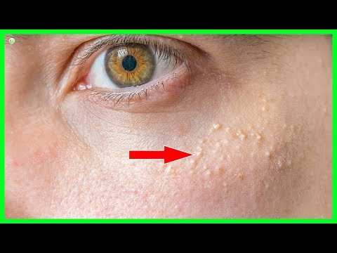 How To Get Rid Of Milia (Hard White Bumps Under Eyes)? | Best Home Remedies