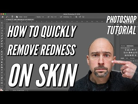 Photoshop Tutorial:  How to quickly REMOVE Redness on Face & Skin