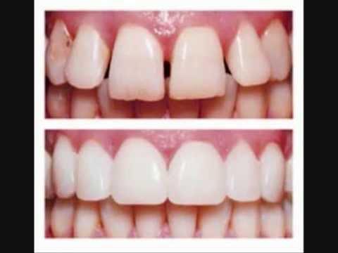 Littleton Dentist 303-794-6800 Dental Crowns Implant Restorations Becker