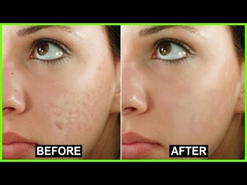 How to Get Rid of Blemishes on Face | Best Acne Scar Treatment.