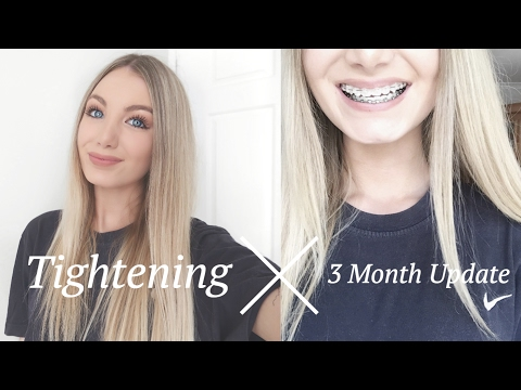 3 Month Braces Update & 2nd Braces Tightening Experience | Close Ups
