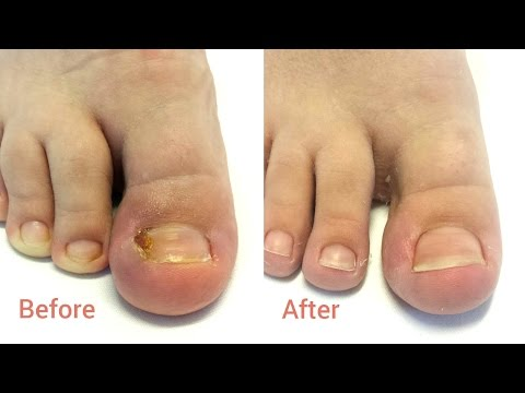 How To Remove Ingrown Toenail At Home