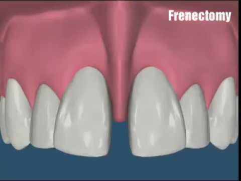 Frenectomy - Dr. Sarabjeet Singh   Chandigarh Orthodontics