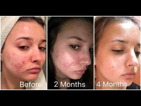 Retin-A 4 Month Skin Update (Acne) | jennybeYOUty