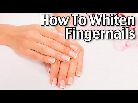 How To Whiten Fingernails