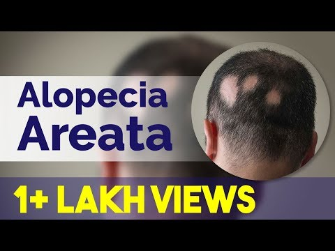 Alopecia Areata। Patchy Hair Loss। Alopecia Totalis । Universalis ।क्या है बालों में कीड़ा लगना