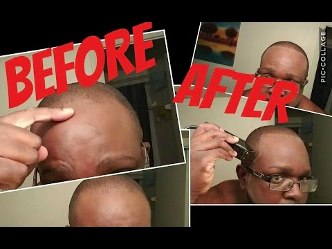 HOW TO FIX YOUR HAIRLINE - Receding and crooked