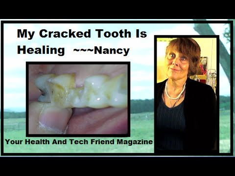 One Yr Update ~ Cracked Tooth Images Healing Then And Now, Remineralize ~~~Nancy