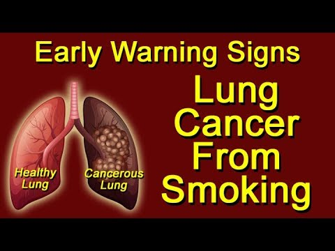 Lung Cancer from Smoking - Early Warning Signs