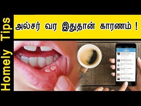 அல்சர் அபாயம் ! அவசியம் பாக்கவும் ! Ulcer danger Facts and reasons in Tamil | Homely Tips