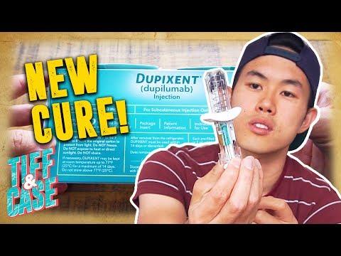 NEW CURE FOR ECZEMA!!   My Journey with Eczema