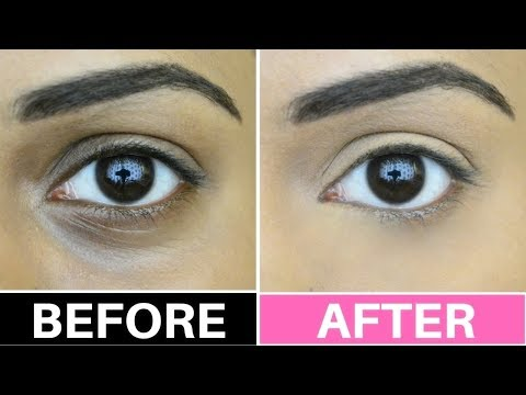 How to Conceal Dark Circles | Indian Tan Olive Brown Skin