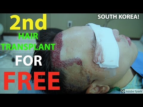 GETTING A 2ND HAIR TRANSPLANT...FOR FREE!!!