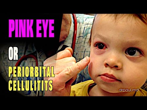LIVE DIAGNOSIS: Pink Eye or Periorbital Cellulitis? | Dr. Paul