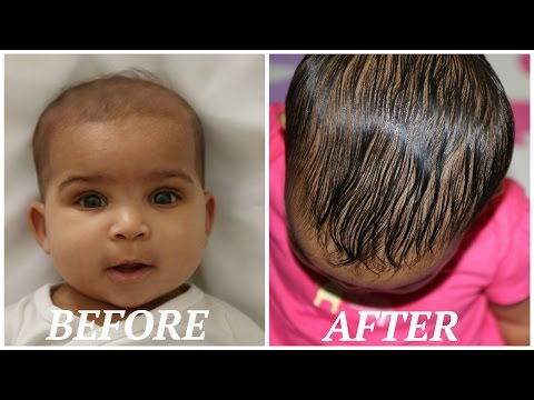 HOW TO GROW YOUR BABIES HAIR BACK FAST!!