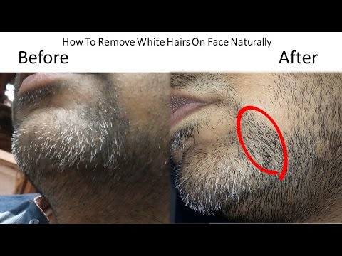 Treatment of White Hairs On Face Permanently