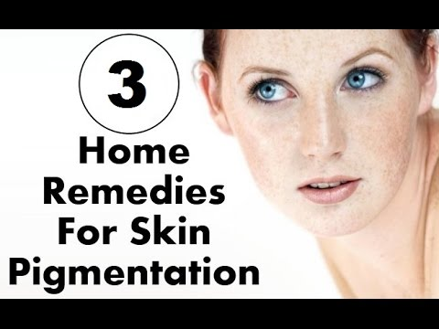 how to get rid of pigmentation on face naturally | how to reduce pigmentation on face naturally