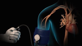Hospitals and health systems can license this video for content marketing or patient engagement. Learn more: http://www.nucleushealth.com/?utm_source=youtube&utm_medium=video-description&utm_campaign=bloodpressure-061813  This video, created by Nucleus Medical Media, shows high blood pressure, or hypertension. This is a common condition in which the force of blood on the walls of your arteries is often too high. While your blood pressure may change throughout the day, it should normally be less than 120 millimeters of mercury for systolic pressure, and less than 80 millimeters of mercury for diastolic pressure. If your systolic pressure frequently stays above 140, or your diastolic pressure frequently stays above 90, you have high blood pressure.   Video ID#: ANH13100