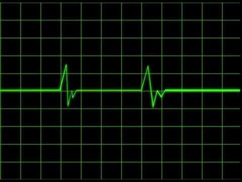 heartbeat monitor animation