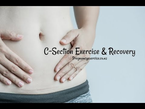 C-Section Exercise and Recovery Advice