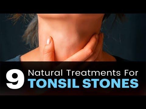 Deep Tonsil Stone Removal Naturally - 9 NATURAL TREATMENTS