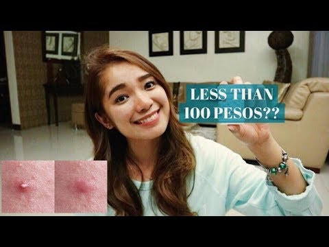 How To Get Rid of Pimples Fast for less than 100 PESOS | Acne treatment