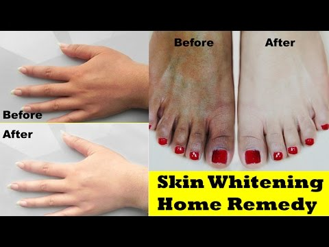 Skin Whitening Home Remedy for Dark Skin, Skin Whitening Treatment for Hands and Legs