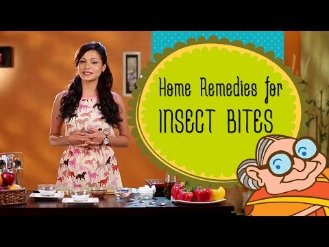 How To Get Rid of Insect & Mosquito Bites -Reduce The Itching Of Insect Bites, Bug Bites & Swelling