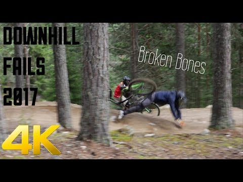 Our 4k MTB FAIL COMPILATION 2017 **BROKEN BONES**  [NeverSeenFootage]