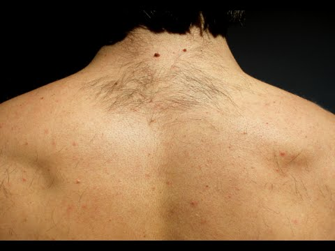 How to Quickly Remove Back Hair with Topical Cream