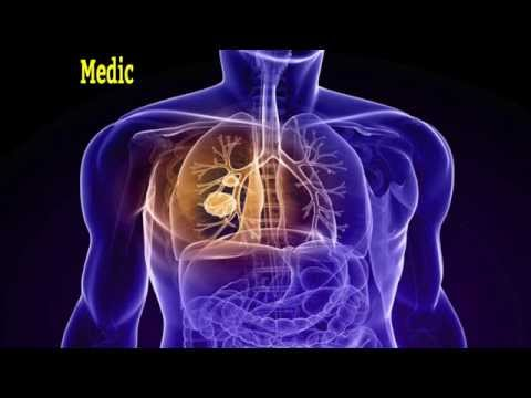 Pleural|Mesothelioma|Asbestos|Lung|Cancer|Peritoneal|Causes|Symptoms|Prognosis|Treatment|Law|Lawyer