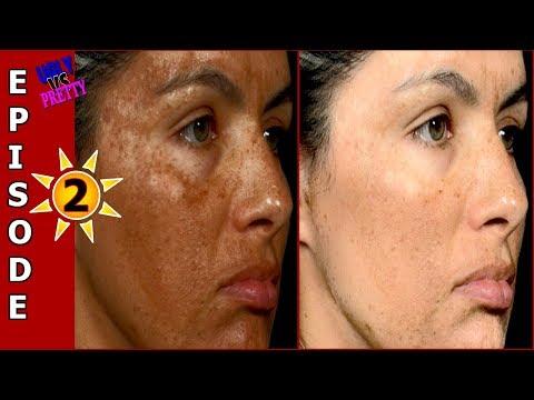 EPISODE 2 | Remove Hyper-pigmentation, Dark Spots, Black Spots Naturally | UGLY VS PRETTY with Priya