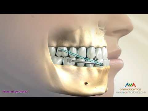 Underbite Treatment by Carriere - Orthodontic Device