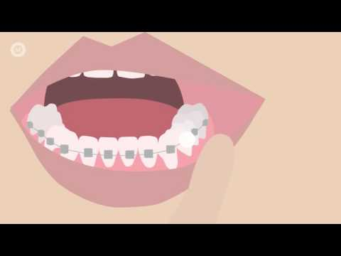 How To Deal With Braces Discomfort - What's Normal, What's Not & What To Do