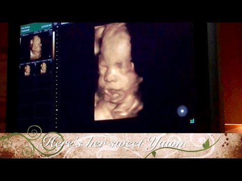 AMAZING 3D 4D Ultrasound Video 30 Weeks Baby Smiling In Womb Yawning Crying & Waving
