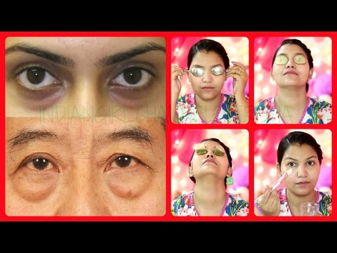 Best 5 Remedies for Puffy eyes/dark circles/eye bags/swollen eyelids (with demo)