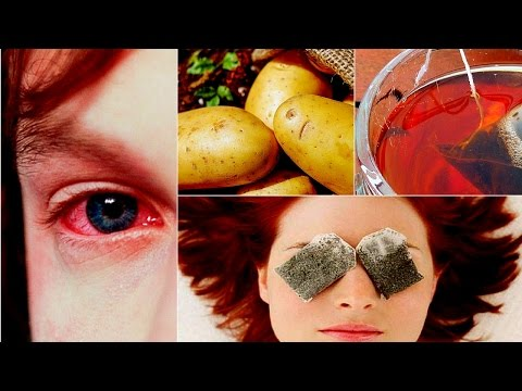 Home Remedies for Eye Infections and Eye Pain