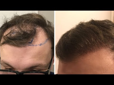 HOW I STOPPED HAIR LOSS AND GOT MY HAIR BACK!